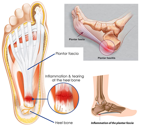 recover steps planter surgery step image from planters to plantar titled how fasciitis